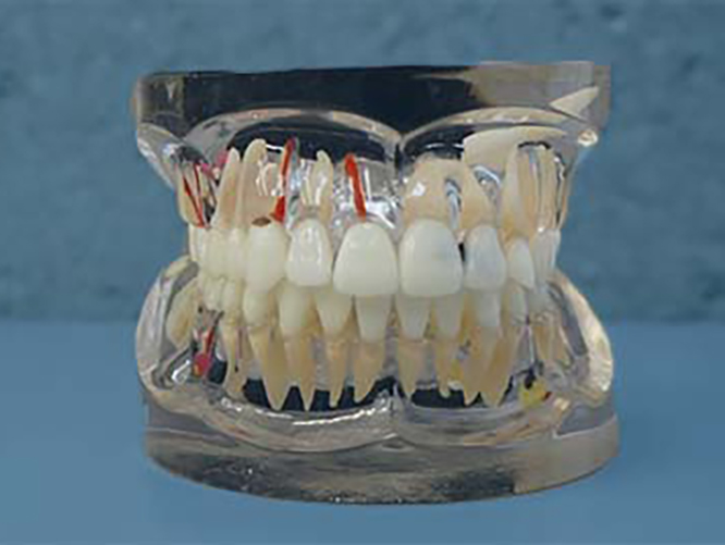 tandenklein
